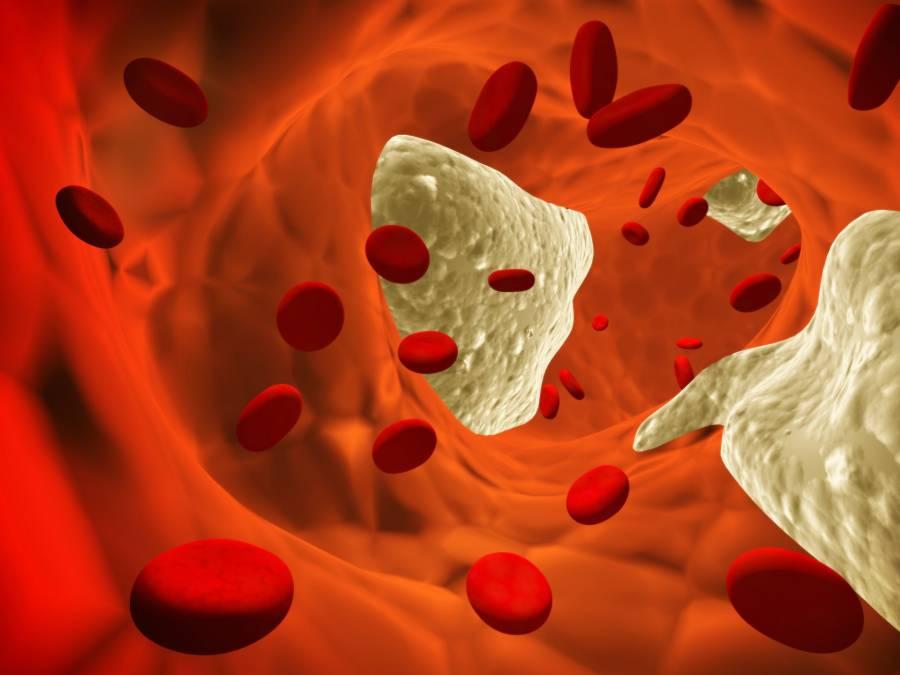 Картинки по теме мочекаменная болезнь